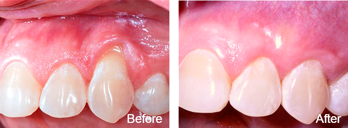 This patient received soft tissue grafting. New gums are less likely to recede in the future.