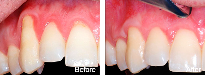 All 6 front teeth received soft tissue grafting.