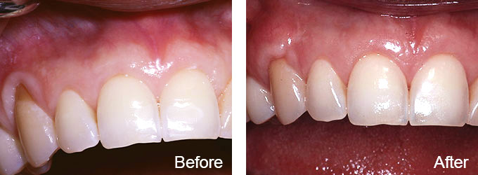 Before & After - Gum Recession Treatment